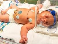 Coincidență stranie într-o maternitate din SUA. Ce i-a uimit pe medici