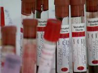 Ce pedeapsă riscă tânărul din Arad care a infectat mai multe femei cu HIV