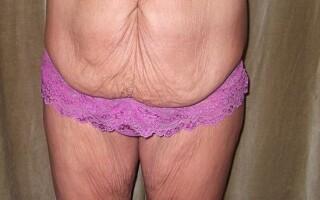 piele lasata, abdomen