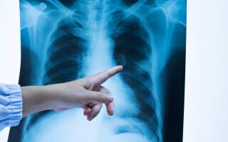 Cum pot fi depistate și evaluate leziunile pulmonare lăsate de infecția COVID-19?