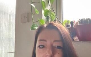 O femeie și-a pierdut o mare parte din păr din cauza COVID-19:
