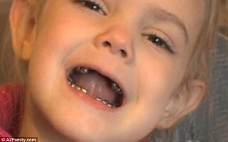 fetita dentist