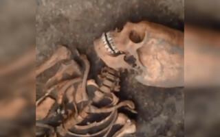 craniu femeie