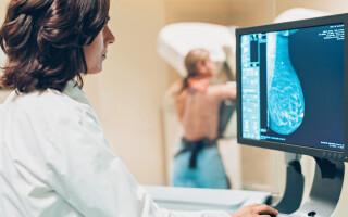 cancer de sân