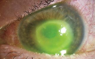 ochi infectat cu keratita amibiana