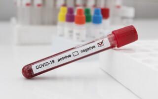 test negativ coronavirus