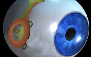 ochiul bionic