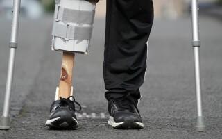 Picior de lemn improvizat