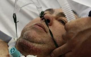 pacient incendiat