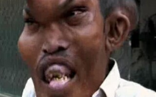 Sain Mumtaz - Sindromul Proteus