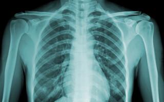 radiografie piept - Shutterstock