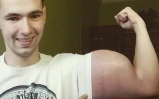 rus, bicepsi, substanta,