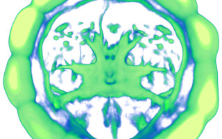 structura creier
