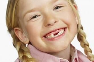 Medicii pot recolta celule stem si din dintii de lapte ai copiilor