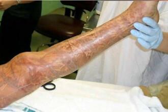 Miracol! La 10 ani, a supravietuit atacului unei meduze ucigase! VIDEO
