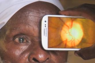 Milioane de oameni ar putea fi salvati de la orbire. Cum functioneaza aplicatia care tine locul unui oftalmolog