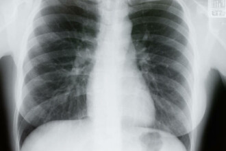 A supravietuit unui accident de motocicleta, dar doctorii nu i-au mai gasit inima la locul ei. Cazul sau este unic