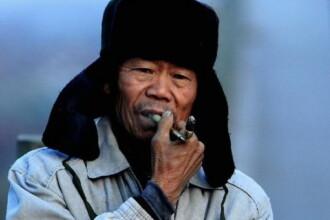 Un chinez traieste de peste 30 de ani cu o boala ciudata. Ce ii creste barbatului din gat