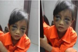 O profesoara i-a invinetit ochii unei fetite de 6 ani dintr-un motiv uluitor. Ce risca acum dascalul