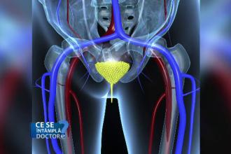 Numarul cazurilor de cancer de prostata a crescut brusc in ultimii ani. Decizia vitala care poate fi luata de barbati