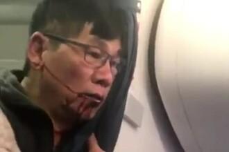 Directorul United Airlines isi cere scuze, dupa ce un pasager a fost tarat dintr-un avion.