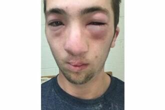 Un student din America i-a pus colegului sau unt de arahide pe fata. De ce risca o pedeapsa de trei luni de inchisoare