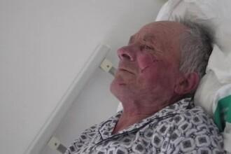 """Medicul care l-a vizitat pe bătrânul bătut din Brașov: """"A plâns de 4 ori într-un ceas"""""""