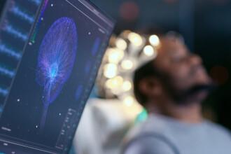 În viitor, creierul uman va fi conectat la internet. Când va fi gata tehnologia