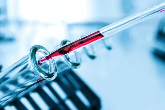 O companie japoneză a creat un test ce depistează coronavirusul în doar două ore