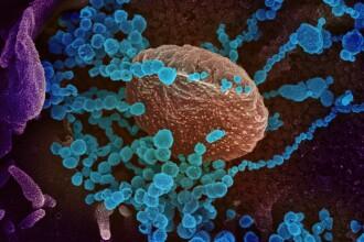 Un nou simptom neasteptat al infectarii cu COVID-19. De ce sunt afectate doar femeile