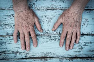 Studiu: Persoanele de peste 65 de ani prezintă un risc mai mare de reinfectare cu coronavirus
