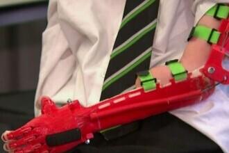 Mână bionică, realizată de un profesor pentru elevul său. Suma infimă pe care a cheltuit-o
