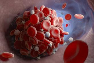 EMA: Peste 300 de cazuri rare de formare de cheaguri de sânge la nivel mondial, după administrarea vaccinurilor anti-Covid