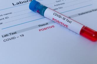 Teste pentru anticorpi COVID-19. Ce semnifică și de ce rezultatele pot fi diferite?