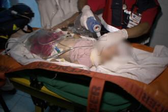 Dambovita: Fetita de numai doi ani lovita in plin de un tren de marfa