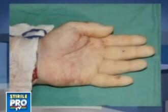 Operatie miraculoasa: dublu transplant de mana