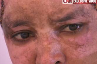 Imagini socante: Bona copiilor unuia dintre fiii lui Kadhafi, mutilata de sotia acestuia. VIDEO