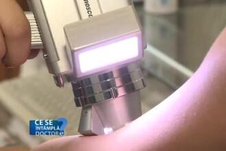 Persoanele cu piele alba, mai expuse riscului de cancer cutanat. Cum poate fi prevenita afectiunea