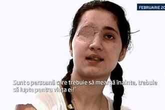 Daniela, tanara impuscata anul trecut in ochiul drept, a trecut printr-o noua interventie. Ce spun medicii despre proteza