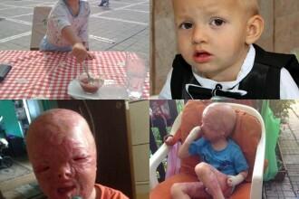 Alex, baietelul desfigurat de explozia unei masini, a plecat luni in Turcia pentru operatie, in urma donatiilor primite