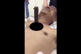 Imagini uluitoare. Un barbat cu un cutit urias infipt in piept vorbeste cu medicii pe patul de spital. VIDEO