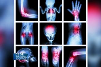 hemartroza genunchiului în caz de tratament cu leziuni ameliorarea durerii în articulațiile brațelor și picioarelor