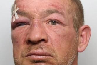 Un bărbat a fost desfigurat de colegii de celulă pentru că a violat o fetiță
