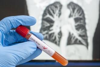 Coronavirus România, 13 august. Un nou record de infectări: 1.454 de cazuri și 53 de decese în ultimele 24h