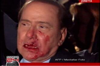 Silvio Berlusconi, plin de sange! Are nasul spart si doi dinti rupti!