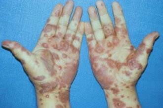 Atentie la ce medicamente luati! Puteti suferi reactii alergice grave!
