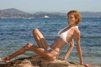 Socant! Un model francez a murit la 28 de ani din cauza anorexiei!