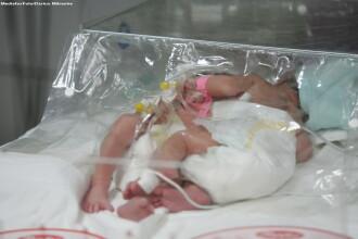 Ce sanse la o viata normala au siamezele nascute la Pitesti. Ultimele 5 cazuri de la noi - esecuri