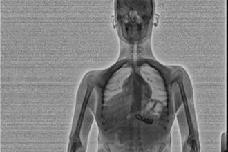 Politia din Florida a descoperit doua coliere in stomacul unui barbat dupa ce l-au scanat