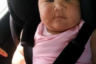 Fetita care la zece luni arata ca la cinci ani. Boala de care sufera afecteaza doar 15.000 de persoane